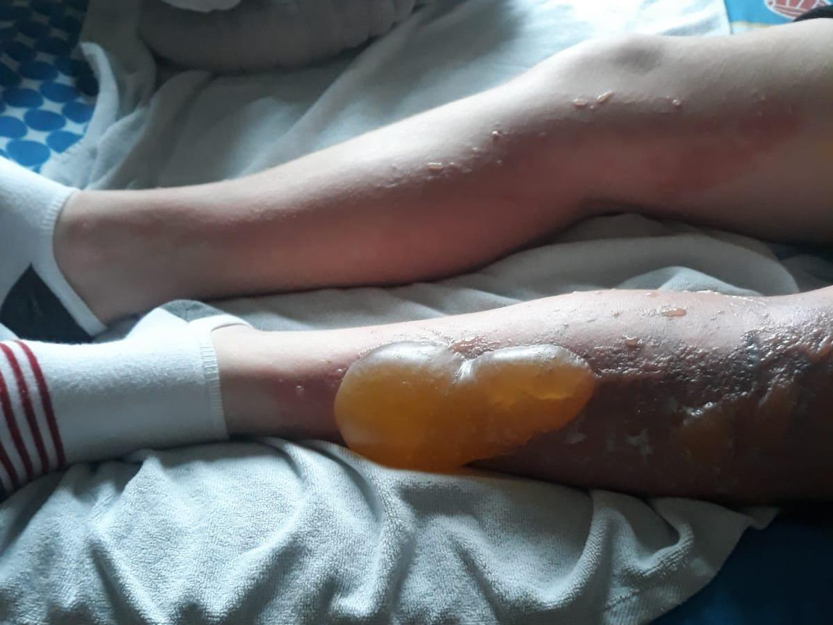NI schoolboy suffered horrific burns caused by toxic plant