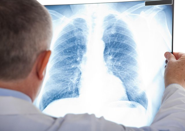 The lung cancer treatment has not been approved for Northern Ireland